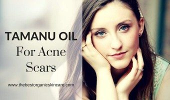discover tamanu oil for acne scars