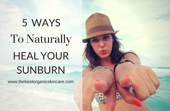 naturally heal a sunburn