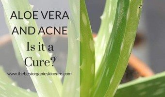 Aloe Vera and Acne : Is it a Cure?