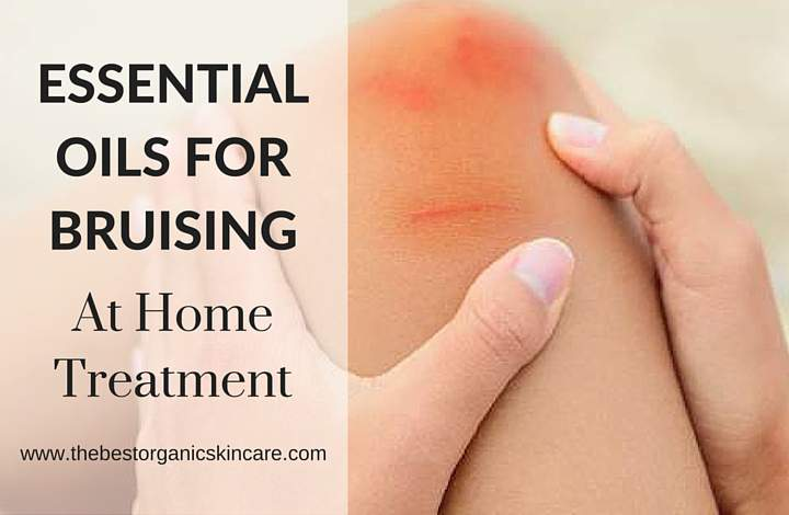 Essential Oils For Bruising : At Home Treatment