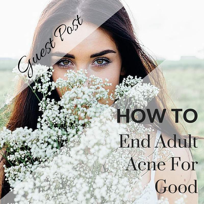 how to end adult acne for good
