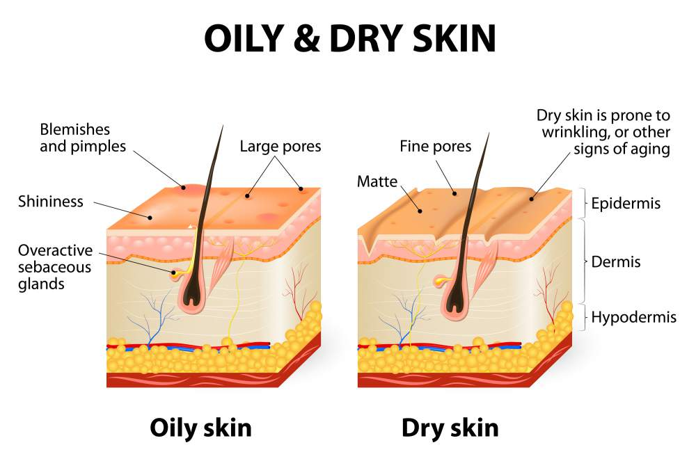 Best Face Oils for People with Oily Skin advise