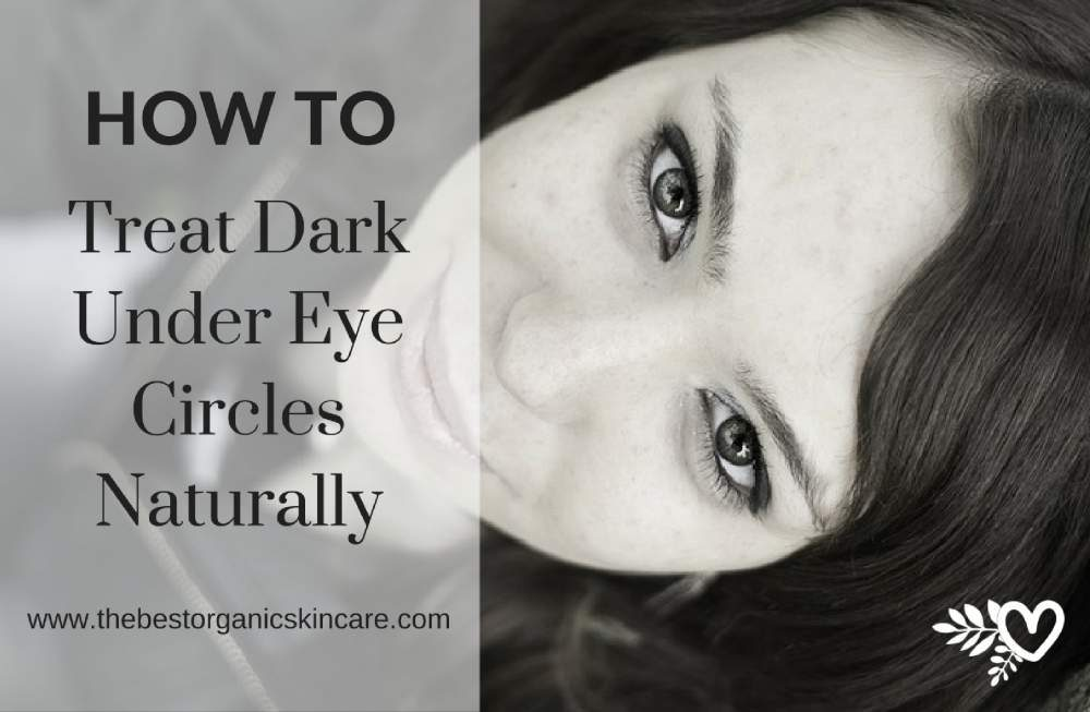 how-to-treat-dark-under-eye-circles-naturally
