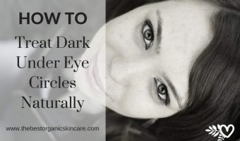 How to Treat Dark Under Eye Circles Naturally