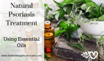 Natural Psoriasis Treatment- Using Essential Oils