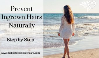 prevent ingrown hairs