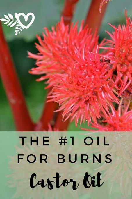 the number one oil for burns