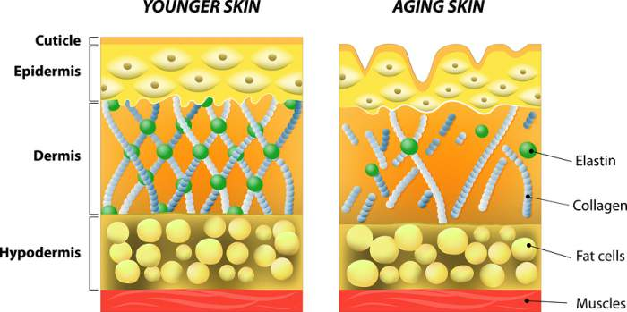 glycolic acid at home skin peels - aging skin