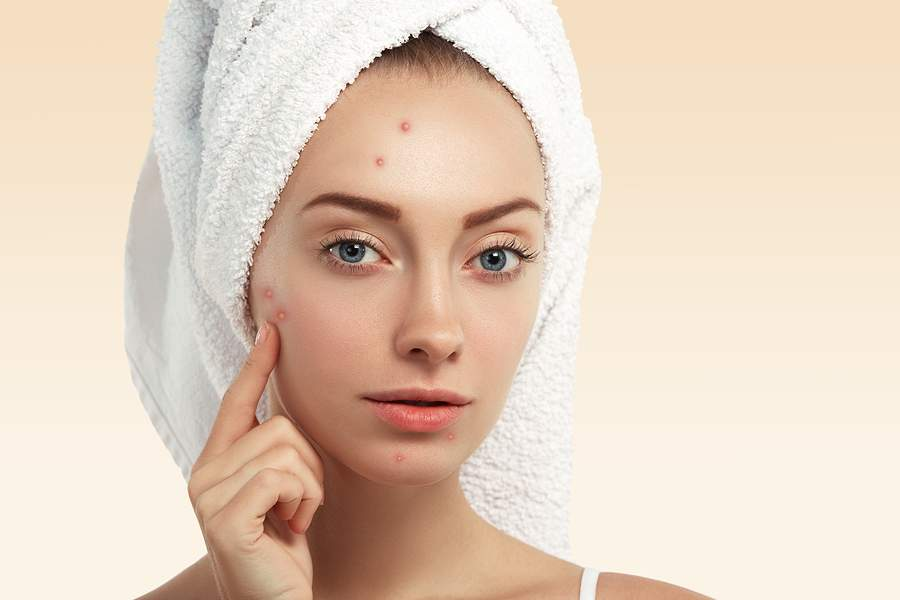 natural and organic skin care for acne - spot treatments