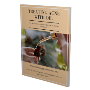 Treating Acne with Oil Ebook 3D cover (1)