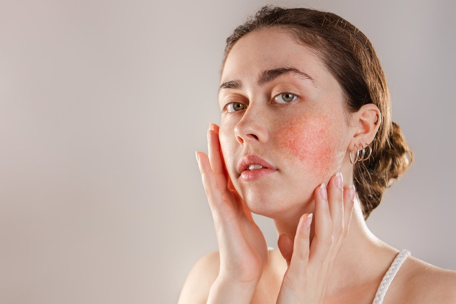 organic skin care products for rosacea skin