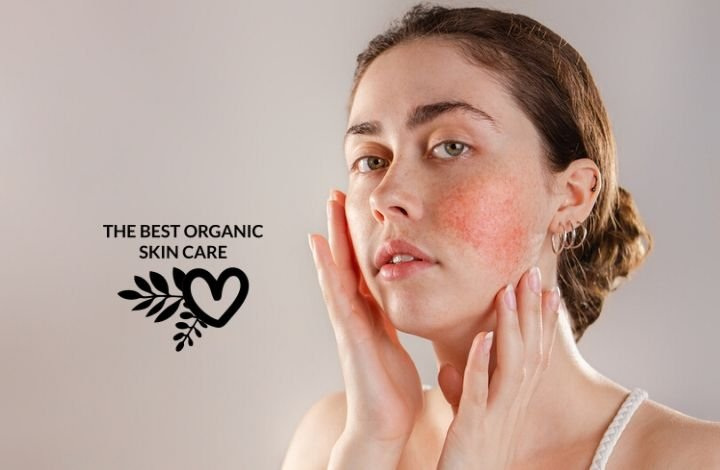 organic skincare for rosacea how to find soothing products